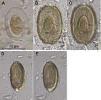 Parasite eggs from moa coprolites